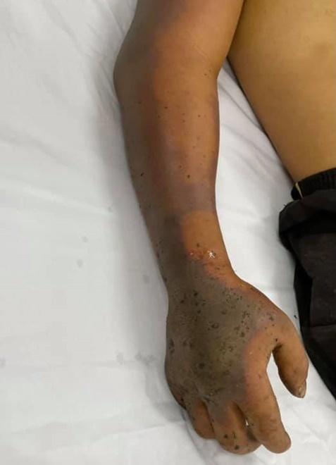 Cánh tay hoại tử của bệnh nhân. Ảnh: Bệnh viện cung cấp