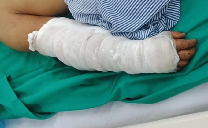 Cánh tay bệnh nhân sau khi được điều trị. Ảnh: Bệnh viện cung cấp