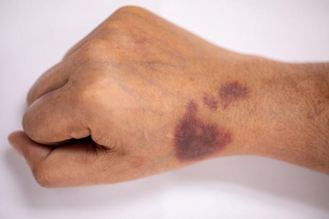 Người mắc bệnh máu khó đông thường xuất hiện các mảng bầm tím.