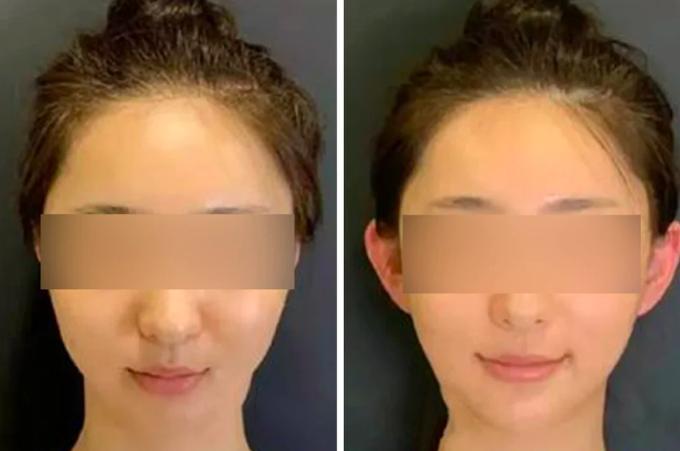 Một phụ nữ Trung Quốc trước và sau khi phẫu thuật tai yêu tinh. Ảnh: SCMP
