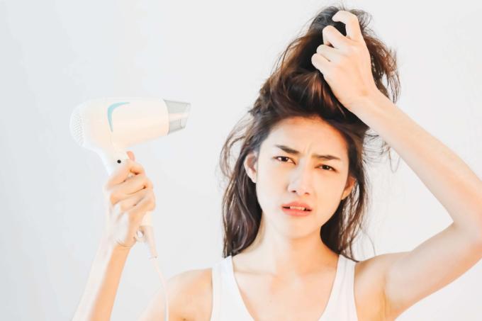 Gàu, ngứa, vi khuẩn trên da đầu gây khó chịu, có thể là dầu hiệu của bệnh lý viêm da. Ảnh: Shutterstock.