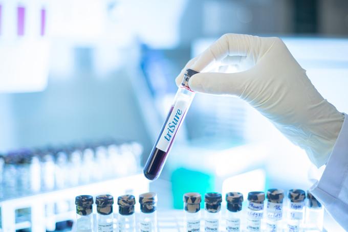 Xét nghiệm NIPT phiên bản Việt có tên gọi triSure đang mang lại nhiều lợi ích cho thai phụ. Ảnh: Gene Solutions