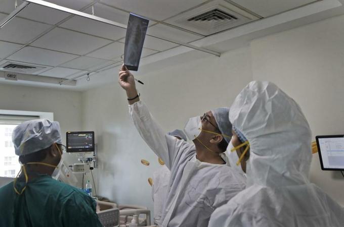 Bác sĩ kiểmt tra kết quả chụp phổi của bệnh nhân Covid-19 tại ICU Bệnh viện Wockhardt Trung tâm Mumba