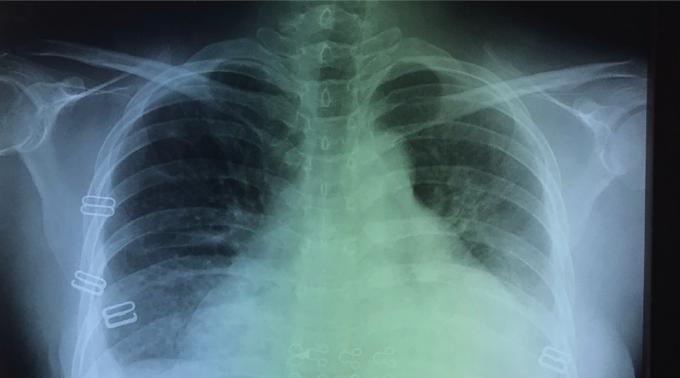 Bệnh nhân bị tràn dịch mang phổi hai bên và tràn dịch màng ngoài tim. Ảnh. Bệnh viện Đa khoa Xuyên Á