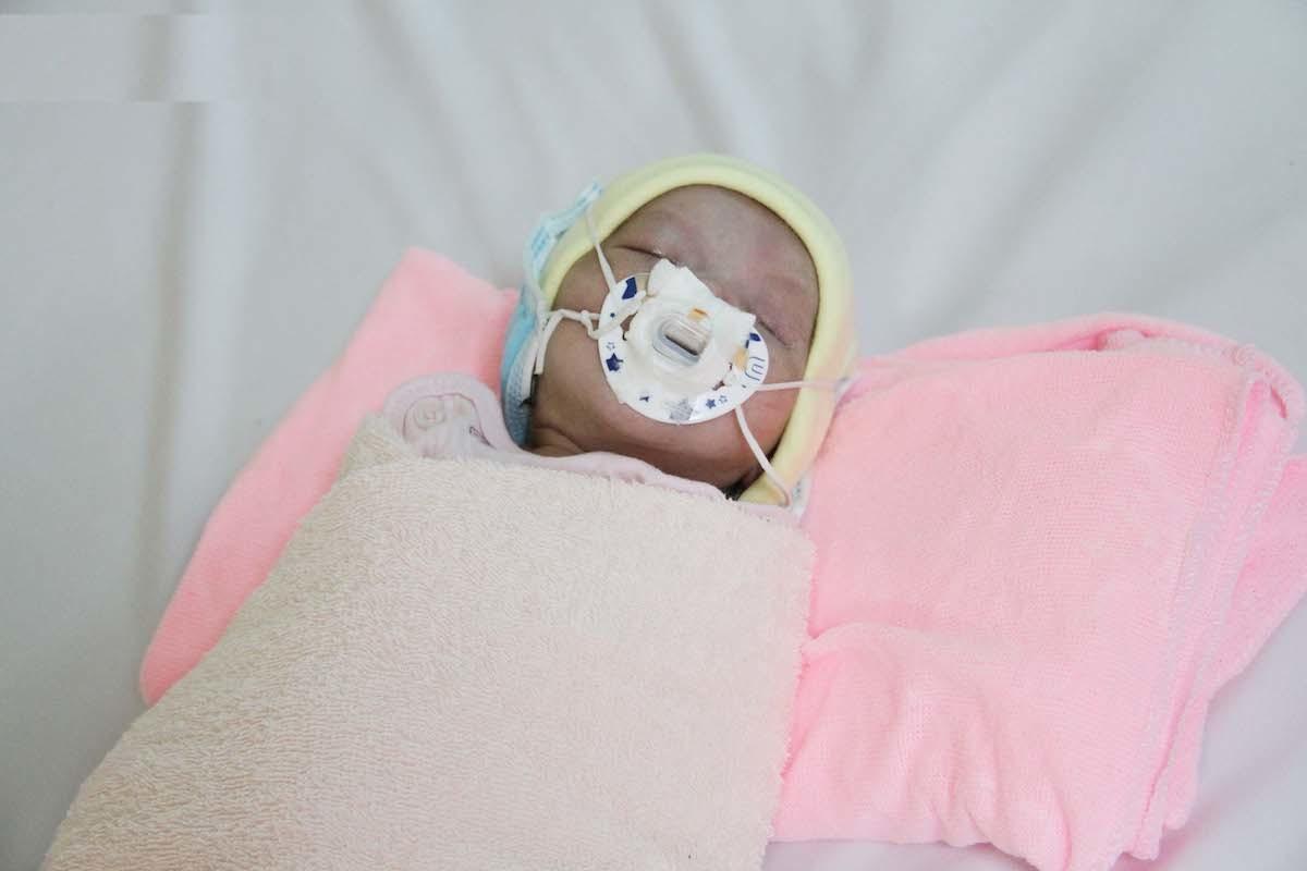 Tìm cơ hội sống cho bé sơ sinh dị tật