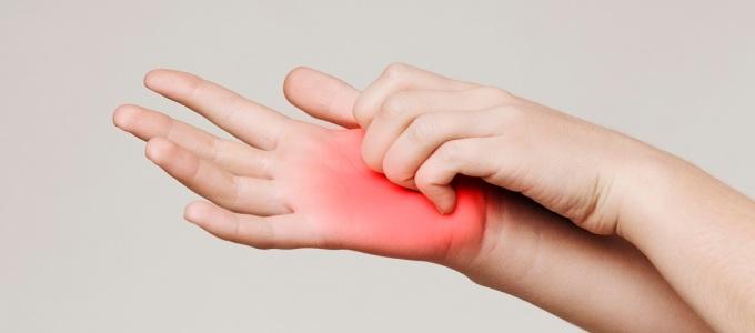 Ngứa lòng bàn tay là một trong những dấu hiệu của bệnh gan. Ảnh: Shutterstock