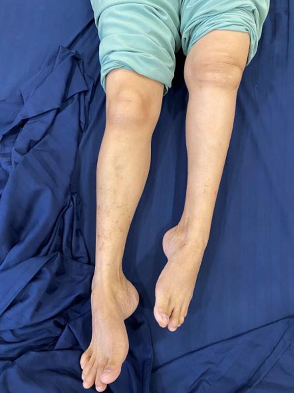 Hình ảnh bệnh nhân trước khi mổ, chân trái ngắn hơn chân phải khoảng 10 cm, bệnh nhân không thể đi lại bằng chân trái.